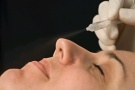 MIKRODERMABRASION Dream a Peel
